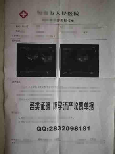 首都医科大学附怀孕收费票据报告单、妊娠B超报告证明、早早孕收费票据样板图片、人工流.jpg