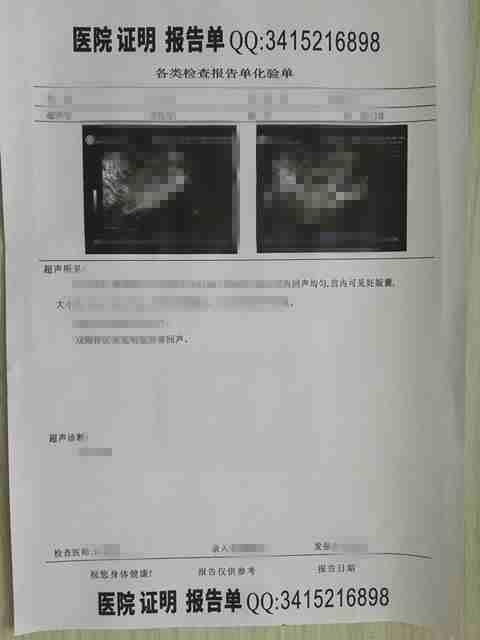 首都医科大学附属北京天坛医院疾病打胎诊断证明、妊娠收费票据报告单、产检血检报告单.jpg