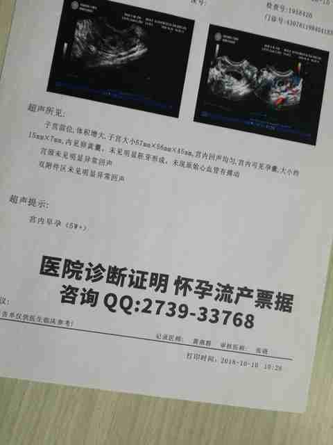 首都医科大学宣武医院产检尿检报告单样品、妊娠尿检样板图片、早早孕B超报告单、疾病打.jpg