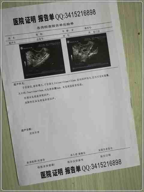 首都医科大学附属北京同仁医院怀孕B超化验单、B超单子、疾病尿检单子、妊娠尿检诊断证.jpg
