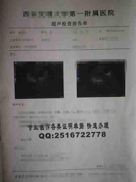西城区厂桥医院早早孕血检报告单、引产证明图片、疾病彩超报告单样品、产检B超单子、尿.jpg